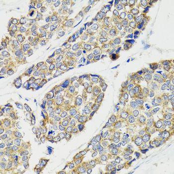 Immunohistochemistry (IHC) IKBKG.