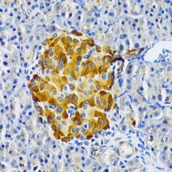 Immunohistochemistry (IHC) EDA.