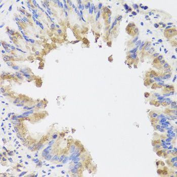 AMBRA1 Recombinant - MyBioSource