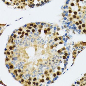 Immunohistochemistry (IHC) TXNL1.