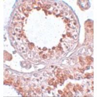 Immunohistochemistry (IHC) ESX1.