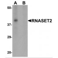 Western Blot (WB) RNASET2.