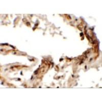 Immunohistochemistry (IHC)