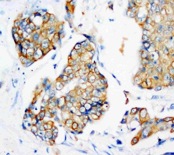 Immunohistochemistry (IHC) KRT18.