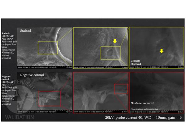 5 nm胶体金结合山羊抗兔IgG二抗免疫组化(IHC)(IHC)图像