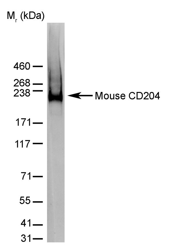 Anti CD204 Antibody Testing Data Image