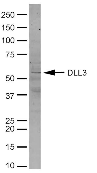 Testing Data #1 DLL3.