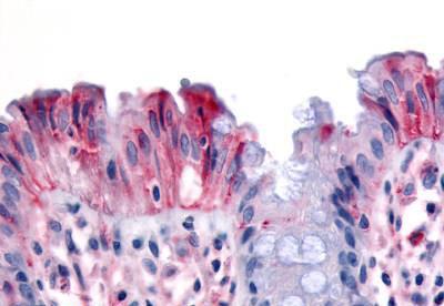 Immunohistochemistry (IHC) MST1R.