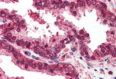 Immunohistochemistry (IHC) EMD.