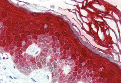 Immunohistochemistry (IHC) CASP14.