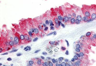Immunohistochemistry (IHC) GPR174.