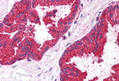 Immunohistochemistry (IHC) MMP7.