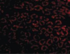 Immunofluorescence (IF) NPHS1.