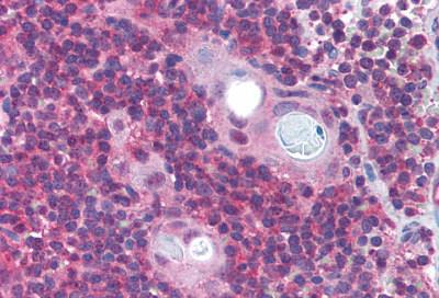 Immunohistochemistry (IHC) PAFAH1B1.