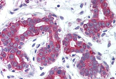 Immunohistochemistry (IHC) TNFSF11.
