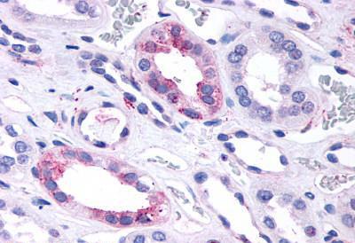 Immunohistochemistry (IHC) GPR146.
