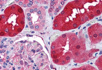 Immunohistochemistry (IHC) RNF213.