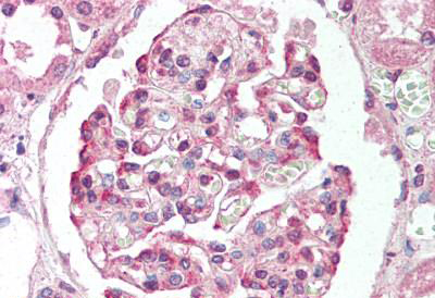 Immunohistochemistry (IHC) PRMT7.