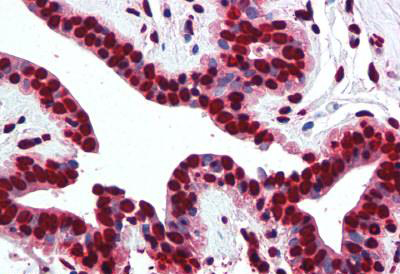 Immunohistochemistry (IHC) histone2A1.