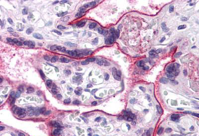 Immunohistochemistry (IHC) APC6.