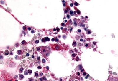 Immunohistochemistry (IHC) EMR1.