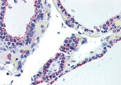 Immunohistochemistry (IHC) ADORA2B.