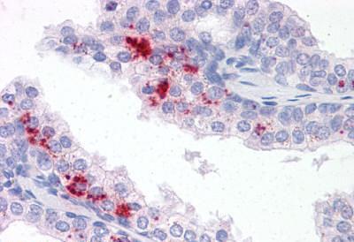 Immunohistochemistry (IHC) TM9SF1.