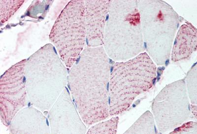 Immunohistochemistry (IHC) RXFP2.