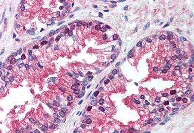 Immunohistochemistry (IHC) VCP.