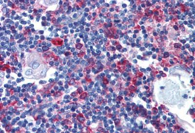 Immunohistochemistry (IHC) CD74.