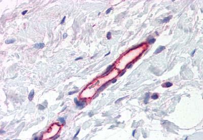 Immunohistochemistry (IHC) TEM7.