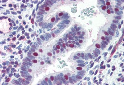 Immunohistochemistry (IHC) ERCC4.