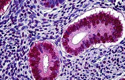 Immunohistochemistry (IHC) PGR.