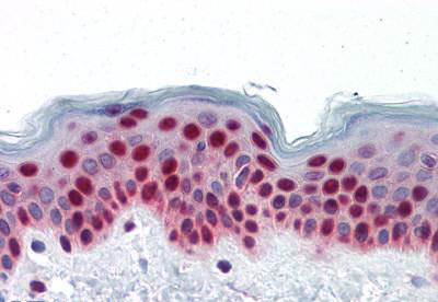 Immunohistochemistry (IHC) PTBP1.