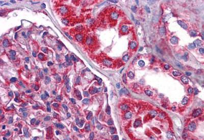 Immunohistochemistry (IHC) NDUFB9.