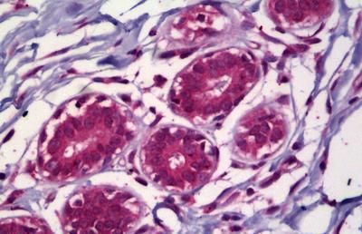 Immunohistochemistry (IHC) ACHE.