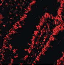 Immunofluorescence (IF) PHAP1.