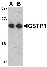 Western Blot (WB) GSTP1.