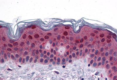 Immunohistochemistry (IHC) FAM120B.