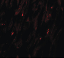 Immunofluorescence (IF) MLIP.