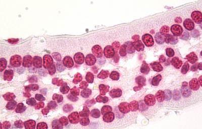 Immunohistochemistry (IHC) HIST1H3D.