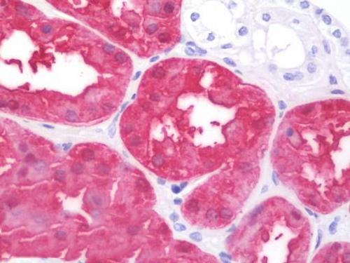 Immunohistochemistry (IHC) ASS.
