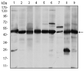 Western Blot (WB) ASS.