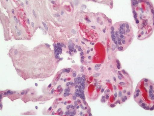 Immunohistochemistry - Paraffin (IHC)