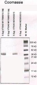 HSV-2 gD antigen | Herpes Simplex Virus-2 (HSV-2) Glycoprotein D