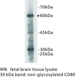 Western Blot (WB) CD80 / B7-1.