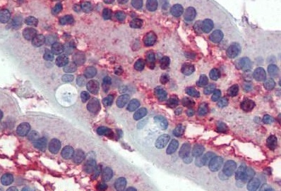 Immunohistochemistry (IHC) CDK1.