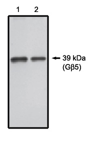 Western Blot/Blotting