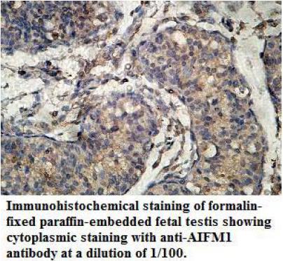 Immunohistochemistry (IHC) #2
