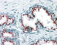 Immunohistochemistry (IHC) GOLM1.